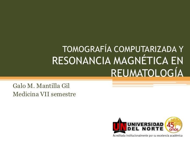 TOMOGRAFÍA COMPUTARIZADA Y RESONANCIA MAGNÉTICA EN REUMATOLOGÍA<br />Galo M. Mantilla Gil<br />Medicina VII semestre<br />