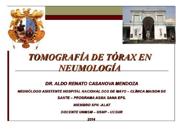 TOMOGRAFÍA DE TÓRAX ENTOMOGRAFÍA DE TÓRAX EN NEUMOLOGÍANEUMOLOGÍA DR. ALDO RENATO CASANOVA MENDOZADR. ALDO RENATO CASANOVA...