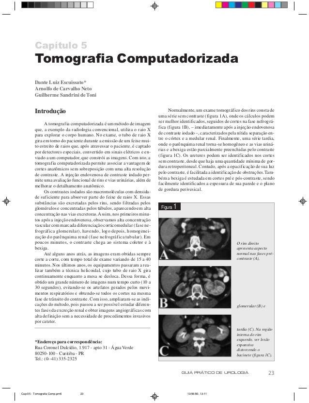Capítulo 5         Tomografia Computadorizada         Dante Luiz Escuissato*         Arnolfo de Carvalho Neto         Guil...