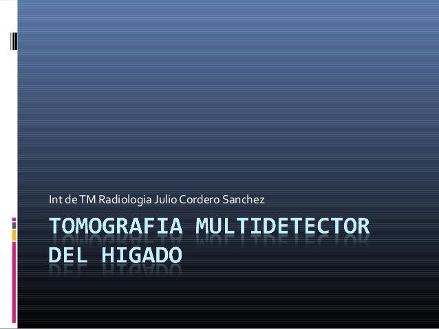 Tomografia multidetector del higado