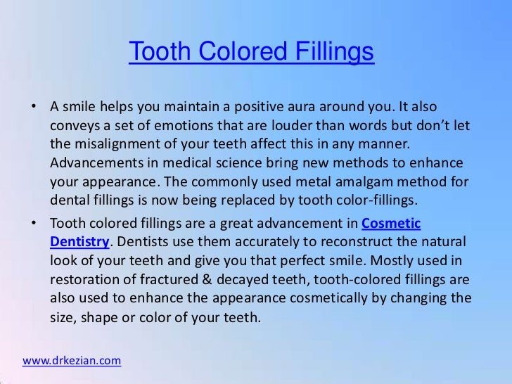 Tooth Colored Fillings 9-21