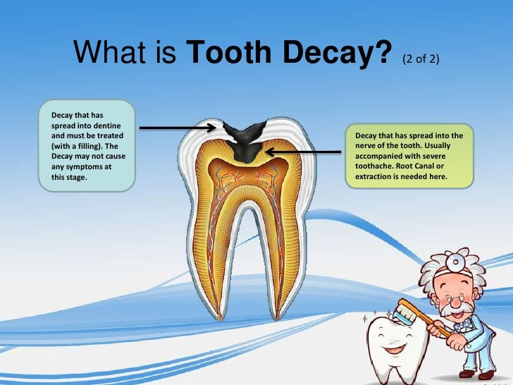 what is tooth decay Tooth decay — or dental caries — is an infectious disease process that causes damage to the structure of teeth cavities (hollowed out spaces or holes) are the.