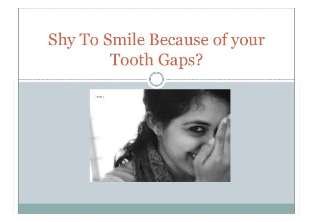 Shy To Smile Because of your Tooth Gaps?