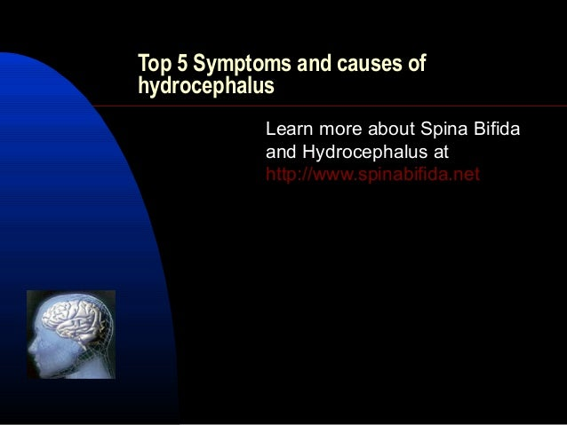 Top 5 Symptoms and causes ofhydrocephalusLearn more about Spina Bifidaand Hydrocephalus athttp://www.spinabifida.net