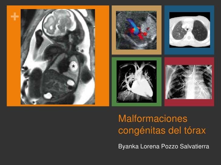 Malformaciones congénitas del tórax<br />Byanka Lorena Pozzo Salvatierra<br />