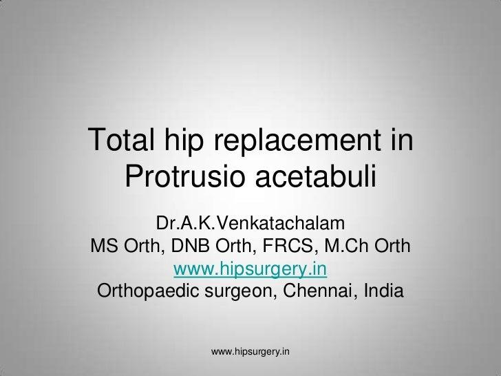 Total hip replacement in  Protrusio acetabuli       Dr.A.K.VenkatachalamMS Orth, DNB Orth, FRCS, M.Ch Orth         www.hip...