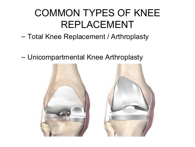 how to get a defined knee
