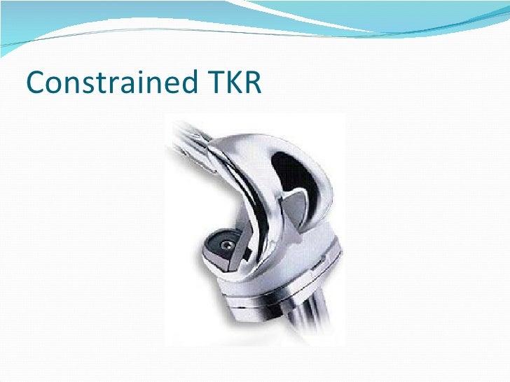Rotating Hinge Knee Replacement Tkr Turtle Still Hoping