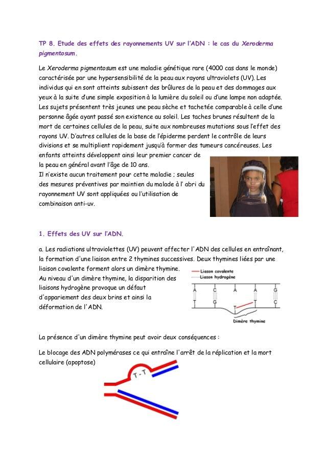 TP 8. Etude des effets des rayonnements UV sur l'ADN : le cas du Xeroderma pigmentosum. Le Xeroderma pigmentosum est une m...