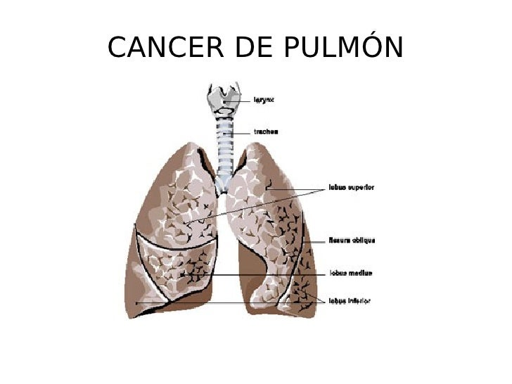 CANCER DE PULMÓN