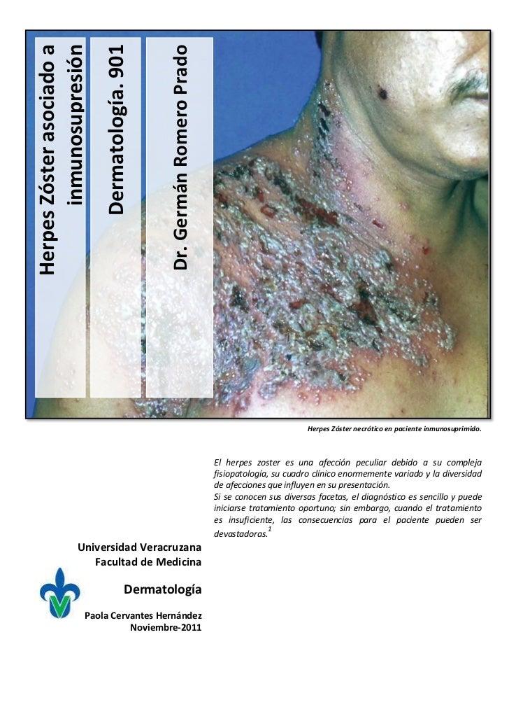Herpes zoster asociado a inmunosupresión