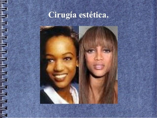 Cirugía estética.