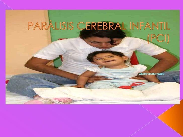 PARÀLISIS CEREBRAL INFANTIL(PCI)<br />ARLETTE OLIVERA TOLEDO<br />