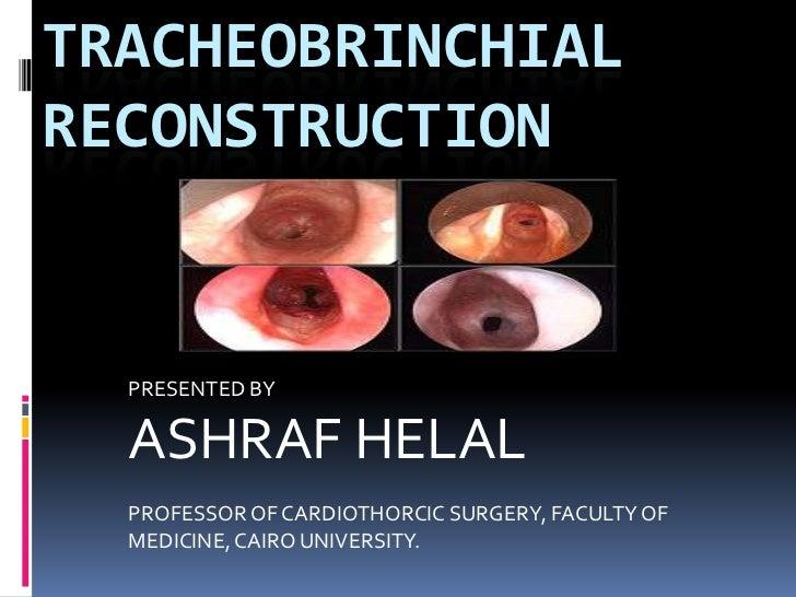 TRACHEOBRINCHIALRECONSTRUCTION  PRESENTED BY  ASHRAF HELAL  PROFESSOR OF CARDIOTHORCIC SURGERY, FACULTY OF  MEDICINE, CAIR...