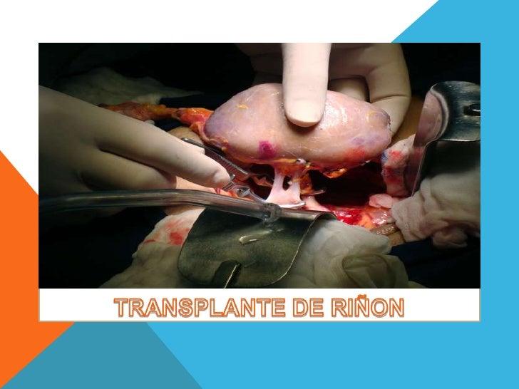 Es el trasplante de un riñón en un paciente con enfermedad    renal avanzada. Dependiendo de la fuente del órgano  recepto...