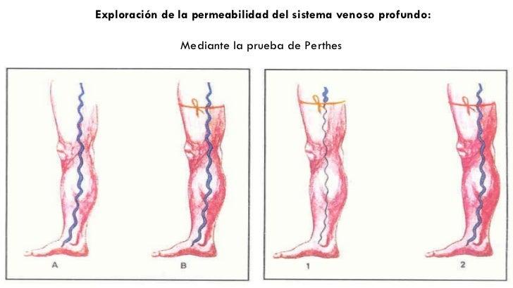La aclaración de la sangre por las medicinas la tromboflebitis