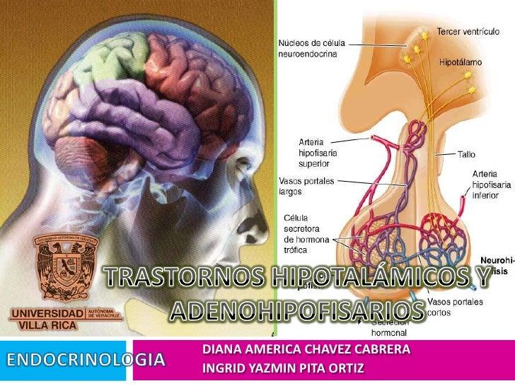 TRASTORNOS HIPOTALÁMICOS Y ADENOHIPOFISARIOS<br />DIANA AMERICA CHAVEZ CABRERA<br />INGRID YAZMIN PITA ORTIZ<br />ENDOCRIN...