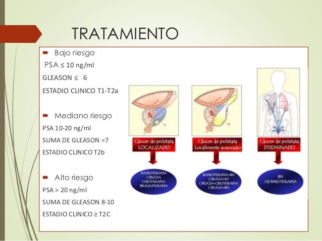 Tratamiento para la prostata related keywords - Tratamiento para carcoma ...