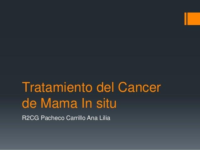 Tratamiento del Cancer de Mama In situ R2CG Pacheco Carrillo Ana Lilia