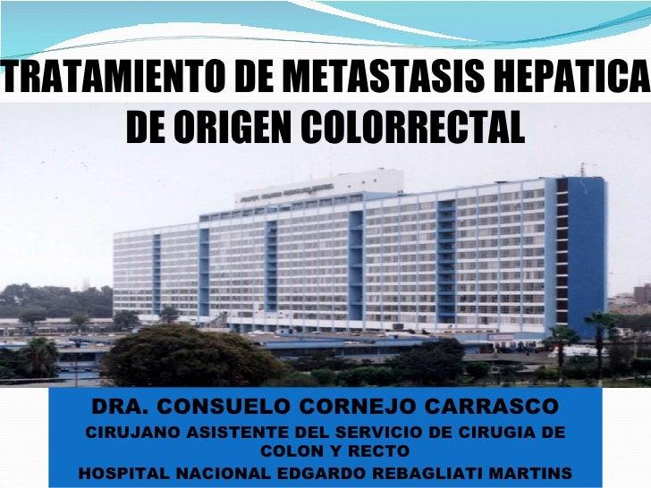 Tratamiento de metastasis hepatica de origen colorrectal. connie