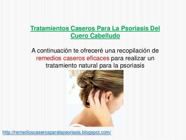 Tratamientos Caseros Para La Psoriasis DelCuero CabelludoA continuación te ofreceré una recopilación deremedios caseros ef...