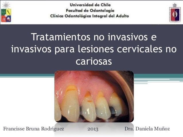 Tratamientos no invasivos e invasivos para lesiones cervicales no cariosas Francisse Bruna Rodríguez 2013 Dra. Daniela Muñ...