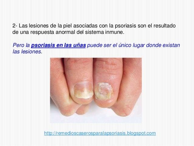 Las manchas blancas sobre las uñas de las manos de la causa y el tratamiento