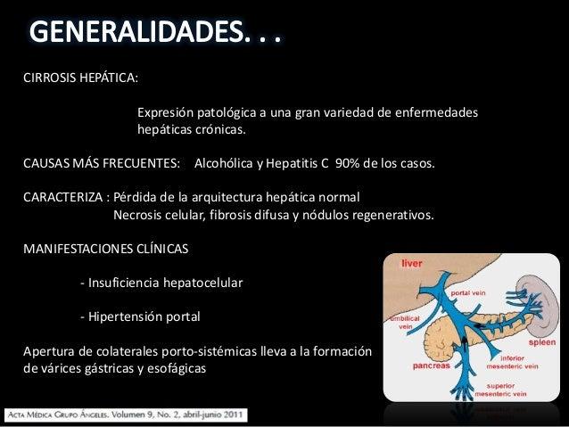 CIRROSIS HEPÁTICA: Expresión patológica a una gran variedad de enfermedades hepáticas crónicas. CAUSAS MÁS FRECUENTES: Alc...