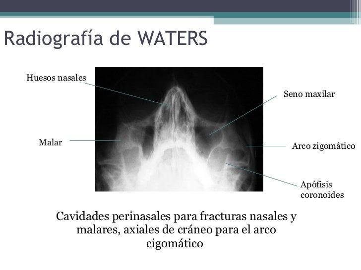 radiografia huesos nasales