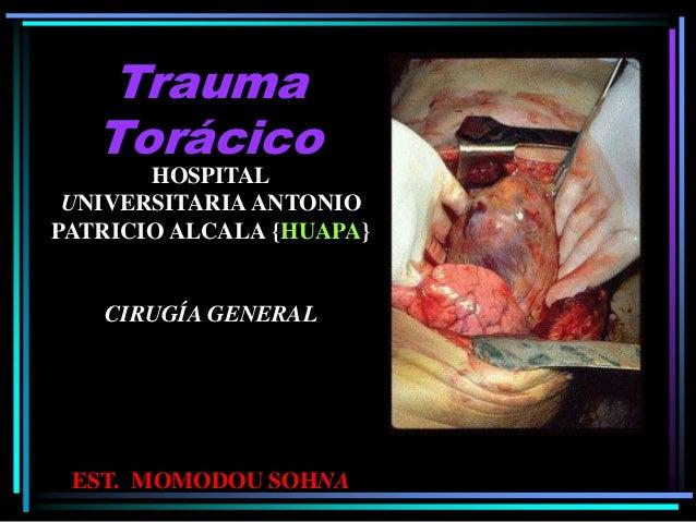 Trauma Torácico HOSPITAL UNIVERSITARIA ANTONIO PATRICIO ALCALA {HUAPA} CIRUGÍA GENERAL EST. MOMODOU SOHNA