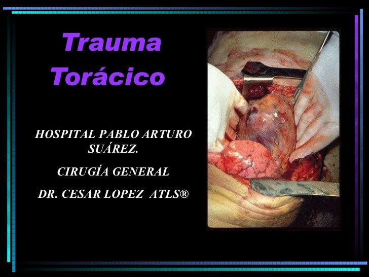 Trauma De TóRax 1