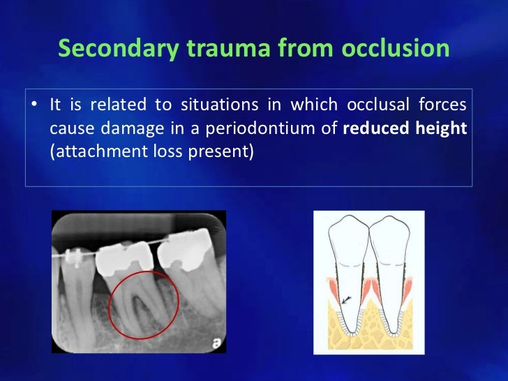 occlusion and occlusal indicating materials A thorough working knowledge of the fundamentals of occlusion and jaw function is critical to the management of patients in a general practice that includes the differential diagnosis of pain, treatment planning, as well as the management of all types of occlusal disease.