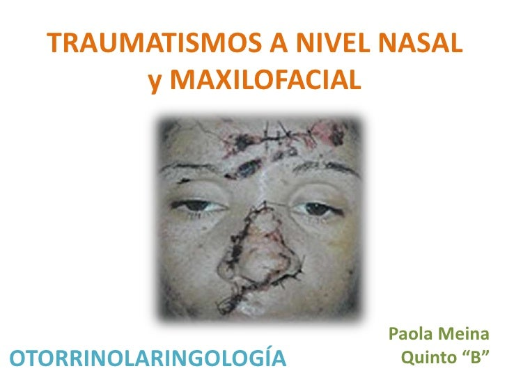 Trauma nasal y maxilofacial