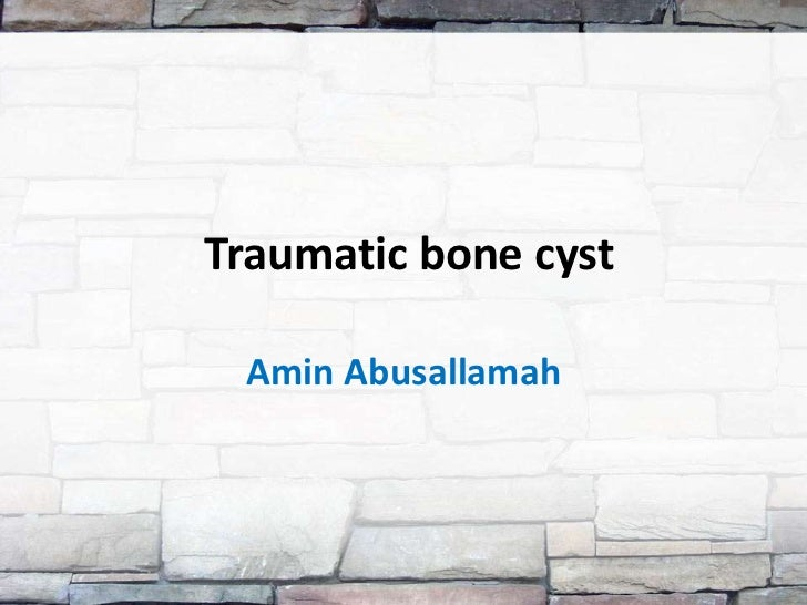 Traumatic bone cyst Amin Abusallamah