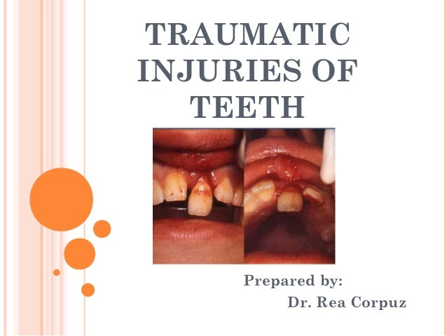 TRAUMATICINJURIES OF   TEETH     Prepared by:          Dr. Rea Corpuz