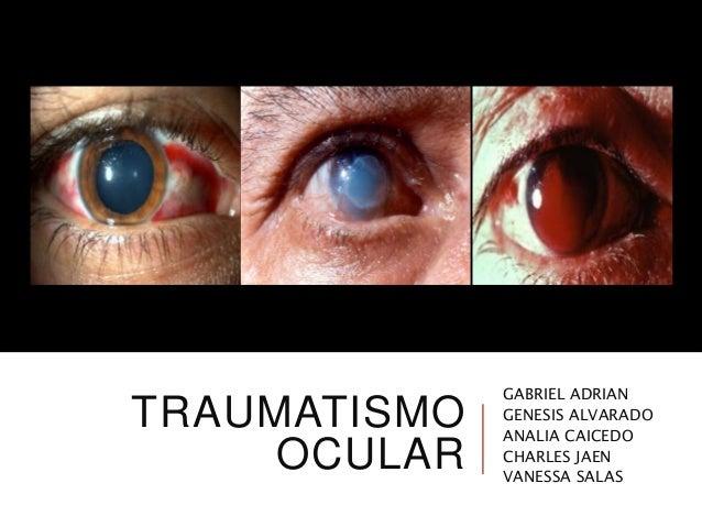TRAUMATISMO OCULAR GABRIEL ADRIAN GENESIS ALVARADO ANALIA CAICEDO CHARLES JAEN VANESSA SALAS