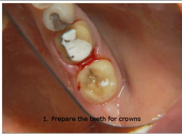 How to use Traxodent to achieve impressions with clear, defined margins