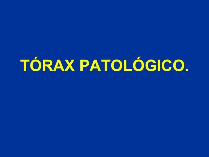 TóRax PatolóGico