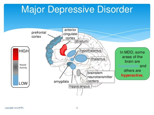 """depression and the brain What is the connection between diet and brain health most people experience occasional, """"situational"""" depression."""