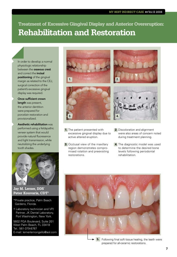 MY BEST INDIRECT CASE          Vol II 2008   Treatment of Excessive Gingival Display and Anterior Overeruption:   Rehabili...