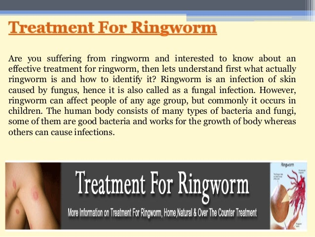 a description of the type of skin infection called ringworm Refers to ringworm infection of the skin around the ringworm of the scalp is a fungal infection also called tinea skin infection: types, causes, and.
