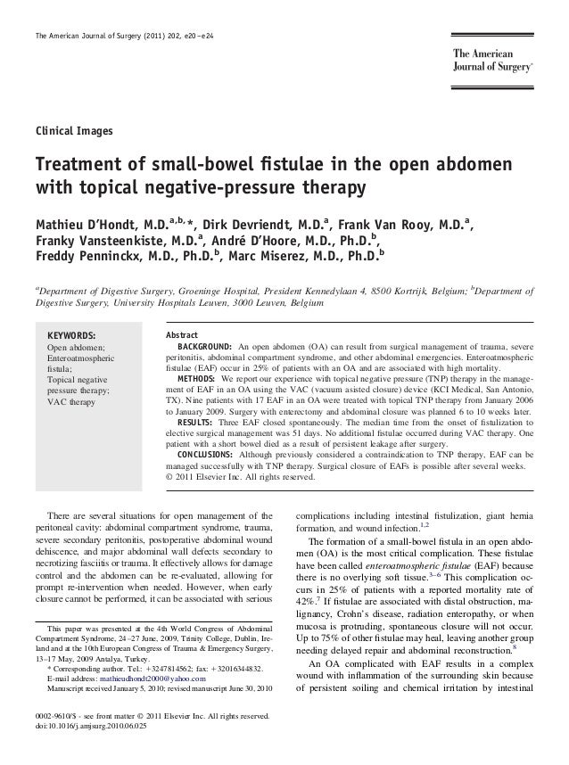 The American Journal of Surgery (2011) 202, e20 – e24Clinical ImagesTreatment of small-bowel fistulae in the open abdomenwi...