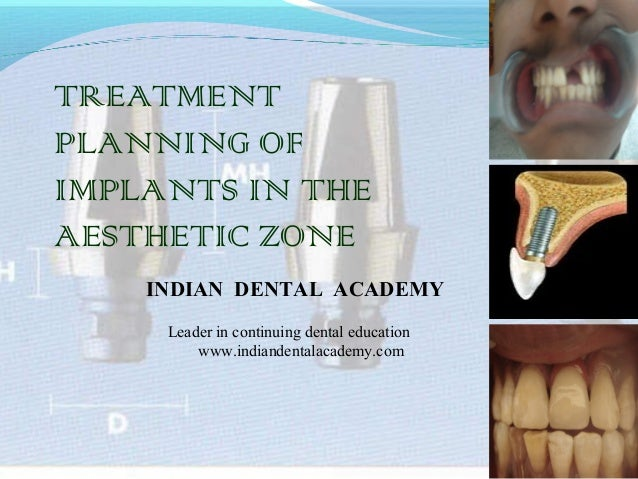 TREATMENT PLANNING OF IMPLANTS IN THE AESTHETIC ZONE INDIAN DENTAL ACADEMY Leader in continuing dental education www.india...