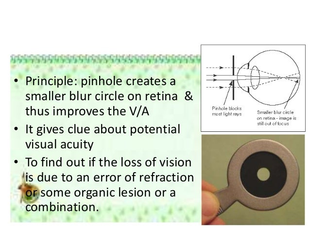 the use of the stenopaeic slit thoringtons disk Background: the thorington method is a refractive technique using the stenopaeic slit, a trial frame accessory comprised of a disc with a narrow,.