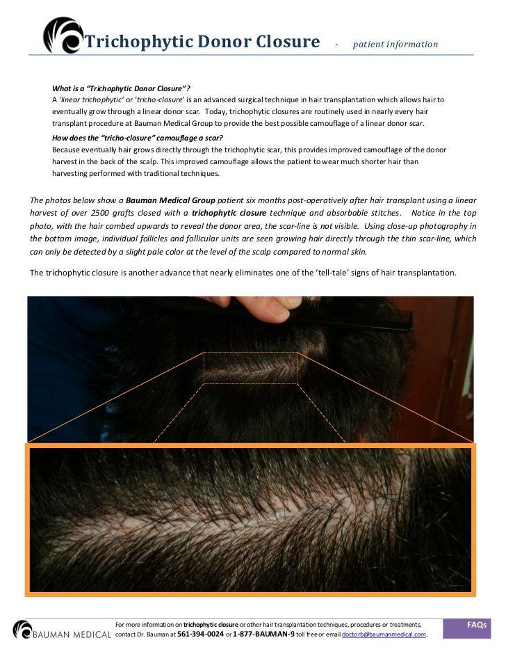 Trichophytic / Tricho-closure Hair Transplant FAQs - Patient Info