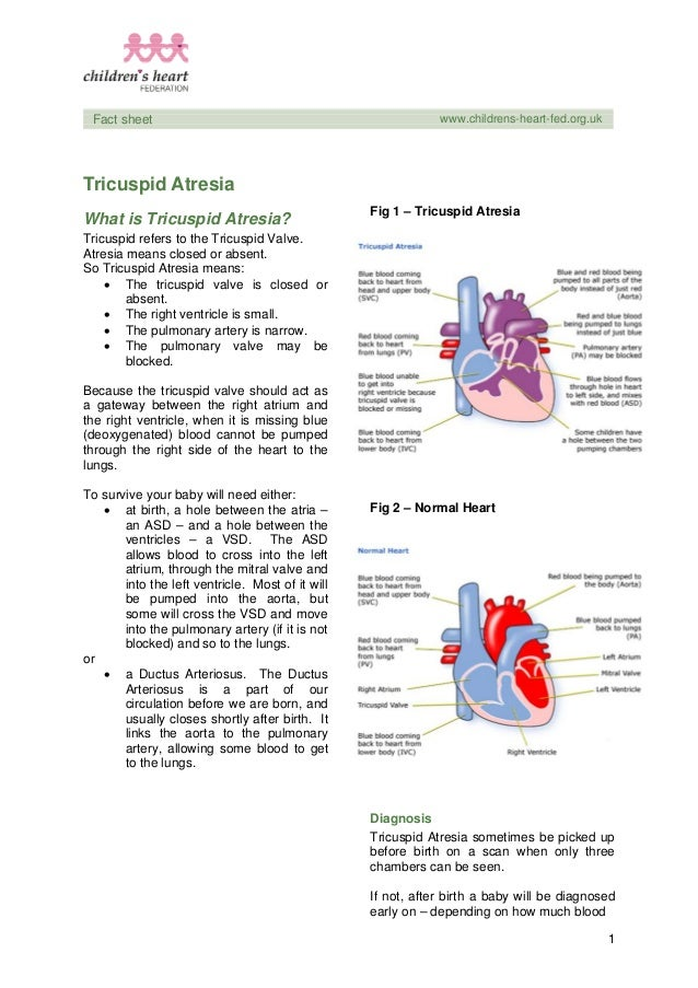 1 Fact sheet www.childrens-heart-fed.org.uk Tricuspid Atresia What is Tricuspid Atresia? Tricuspid refers to the Tricuspid...