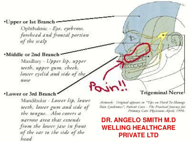 TRIGEMINAL NEURALGIA DR. ANGELO SMITH M.D WELLING HEALTHCARE PRIVATE LTD