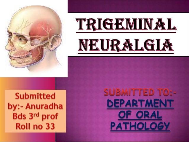 Trigeminal neuralgia presentation