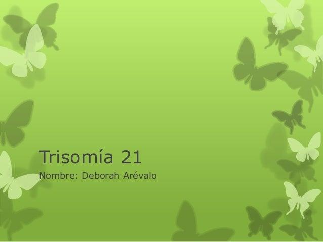 Trisomía 21Nombre: Deborah Arévalo