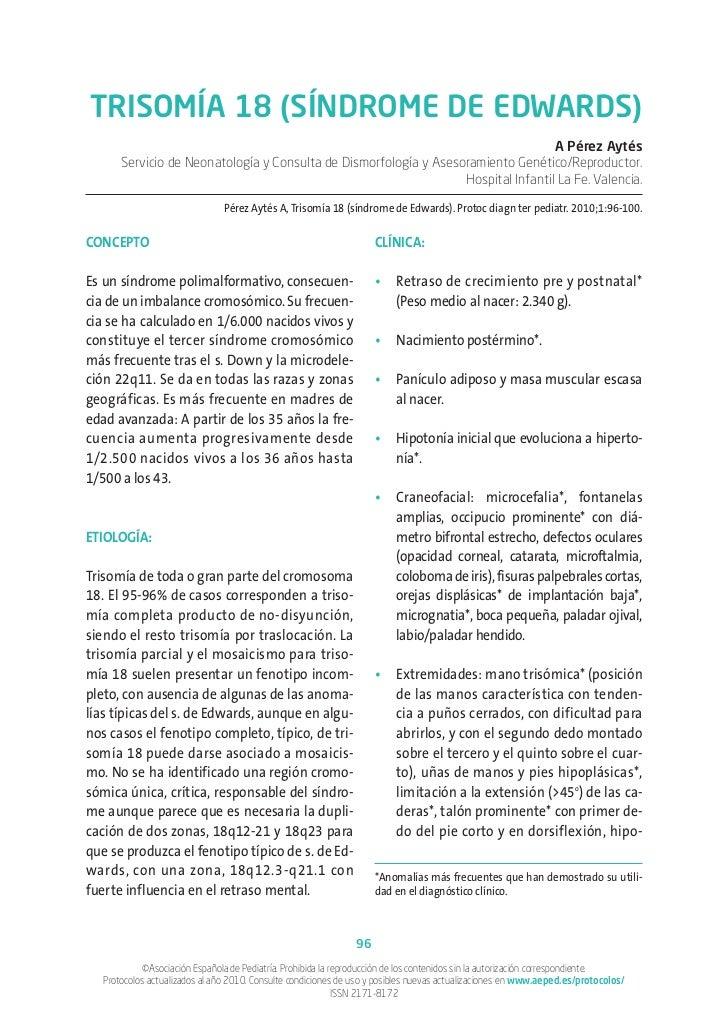 Trisomia 18. síndrome de edwards